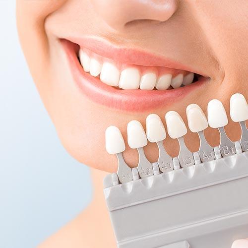 New York Clinic - Odontología - Blanqueamiento