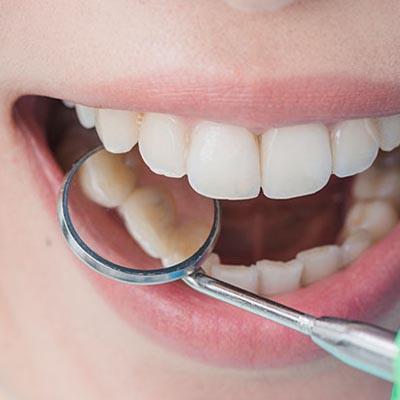 New York Clinic - Odontología - Periodoncia