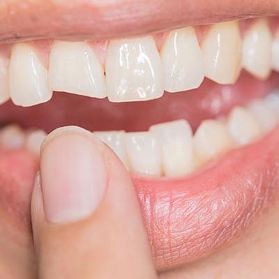 New York Clinic - Odontología - Prótesis