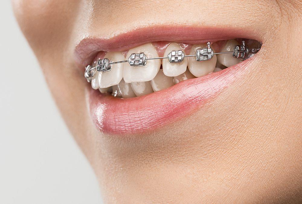 Sonrisas desalineadas (maloclusión) y todo lo que debes saber sobre ellas